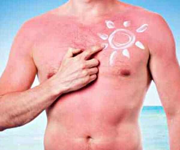 Sunburns can harm your skin